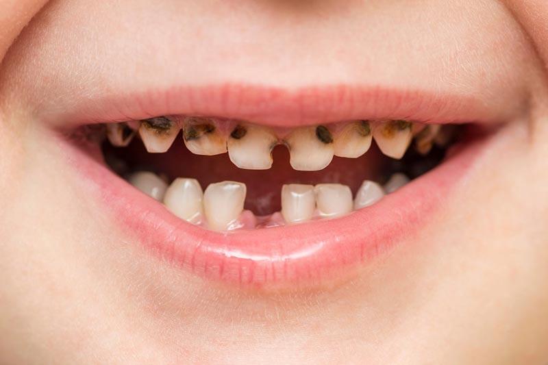 Почернение молочных зубов