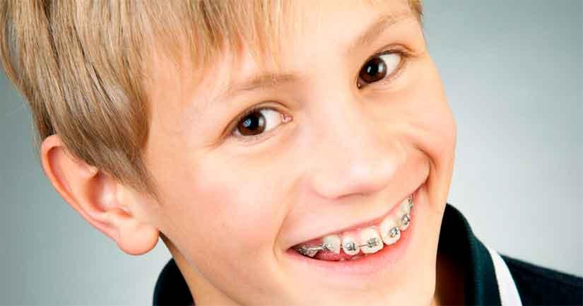 У ребенка растут кривые зубки - исправление брекетами